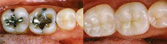 Tooth-Colored Fillings (Composites)
